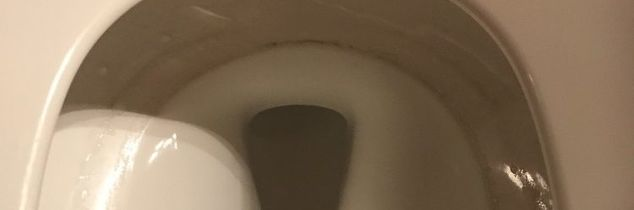 q how to get rid of a toilet ring