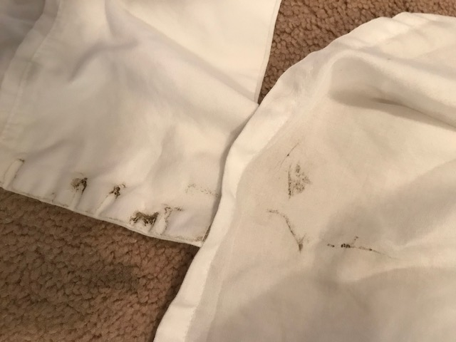 q brown lines on clean laundry